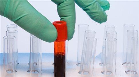 Απλή εξέταση αίματος προβλέπει τον κίνδυνο υποτροπής της λευχαιμίας