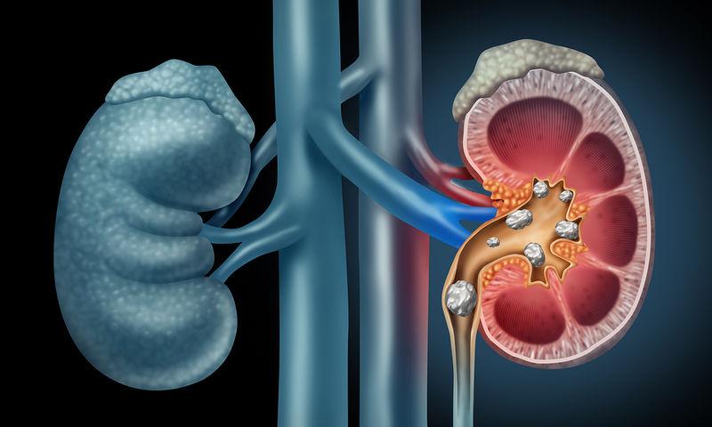 Πέτρες στα νεφρά: Ο ειδικός απαντά σε 6 κοινές απορίες